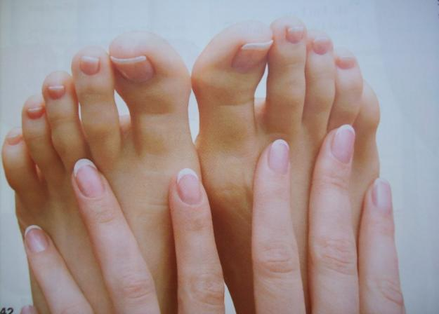 El hongo de la piel de los pie de la foto y el tratamiento